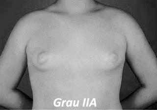 ginecomastia grau 2A