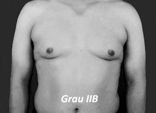 ginecomastia grau 2B