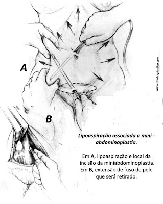 lipoaspiração e mini-abdominoplastia