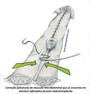 sutura de musculatura em diastase