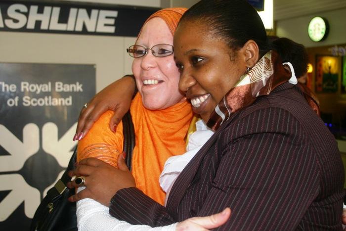 Al+shymaa+01 - Murders of Albinos in Tanzania  - Weird and Extreme
