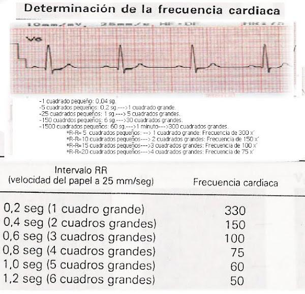 ECG-Frecuencia