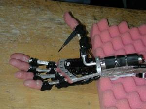 image of prosthetic hand