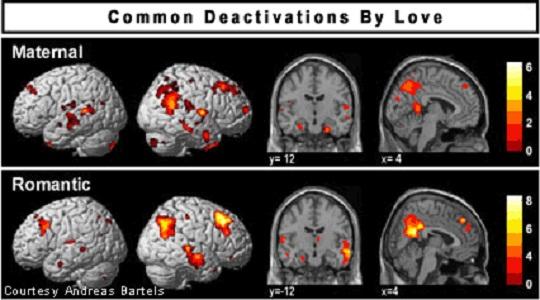Otak Manusia Setelah 20 Tahun Menikah