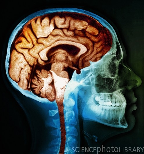 mri brain scan. Cool Brain/Body Pics