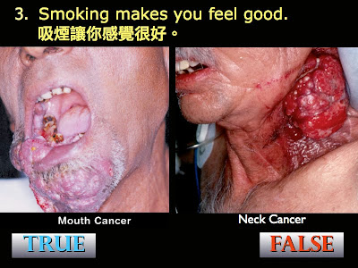 a discussion on the effects of secondhand smoking Obviously, quitting smoking if you are a smoker is the best way to protect your family and friends from secondhand smoke a number of support systems, programs, and even prescription medications are available to help smokers break the habit.