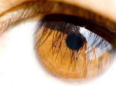 Os círculos e as bolsas abaixo de olhos como livrar-se