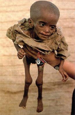 Fotos de los niño desnutridos de africa