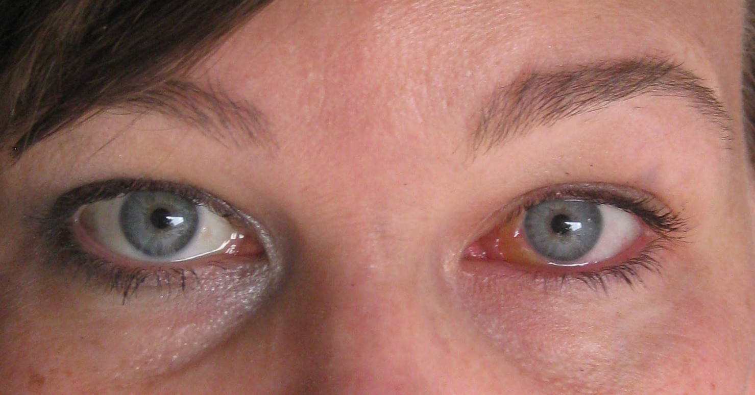 Swollen Eye Near Tear Duct