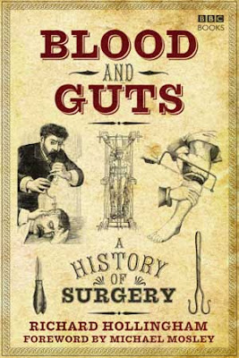 Telona - Filmes rmvb pra baixar grátis - Blood and Guts: A History of Surgery [Completo] BBC