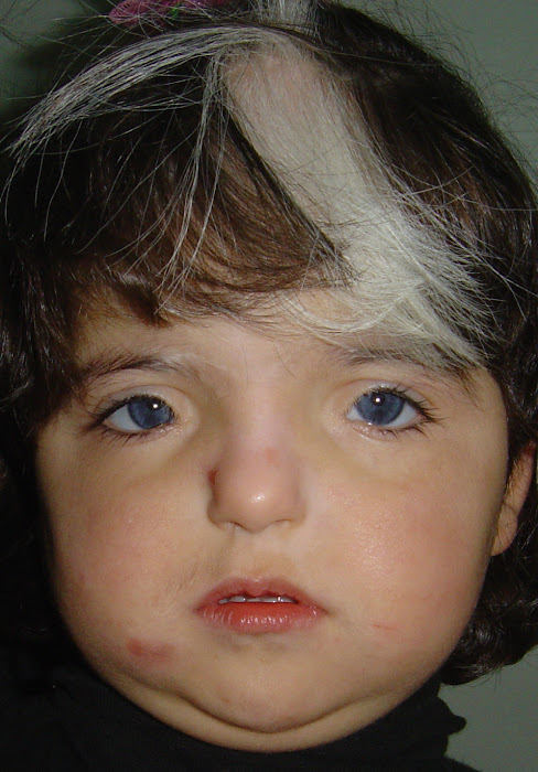 Fetal alcohol syndrome adults effects