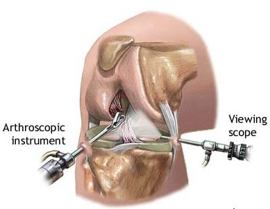 MENISCUS SURGERY VIDEO
