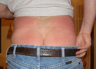 Urticaria Latest Info On Hives Treatment Rash