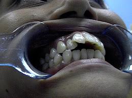 rawatlah gigi anda