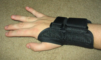 Wrist splint worn carpal tunnel syndrome (CTS) patient.