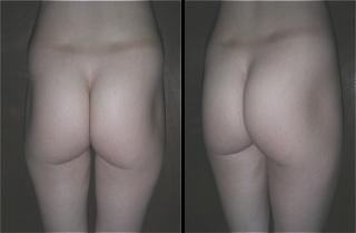 Fotografia antes y despues de implantes gluteos Guadalajara