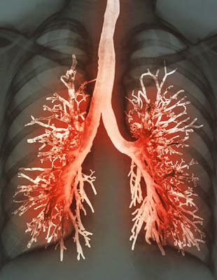 искусственные лёгкие