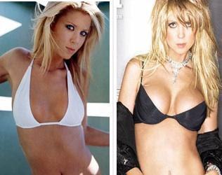 i want a breast augmentation