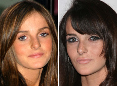 ali lohan implants