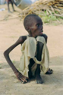 Starving child in Sudan