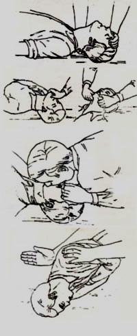 asfixia pumas