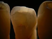 Denti Naturali
