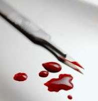 Tarkan's critics often try to draw blood