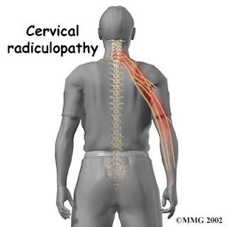 http://1.bp.blogspot.com/_KGX7MYGDoqo/SHy_24NveFI/AAAAAAAAAIQ/HhxafNdBbpg/s320/cervical_radiculopathy_intro01.jpg