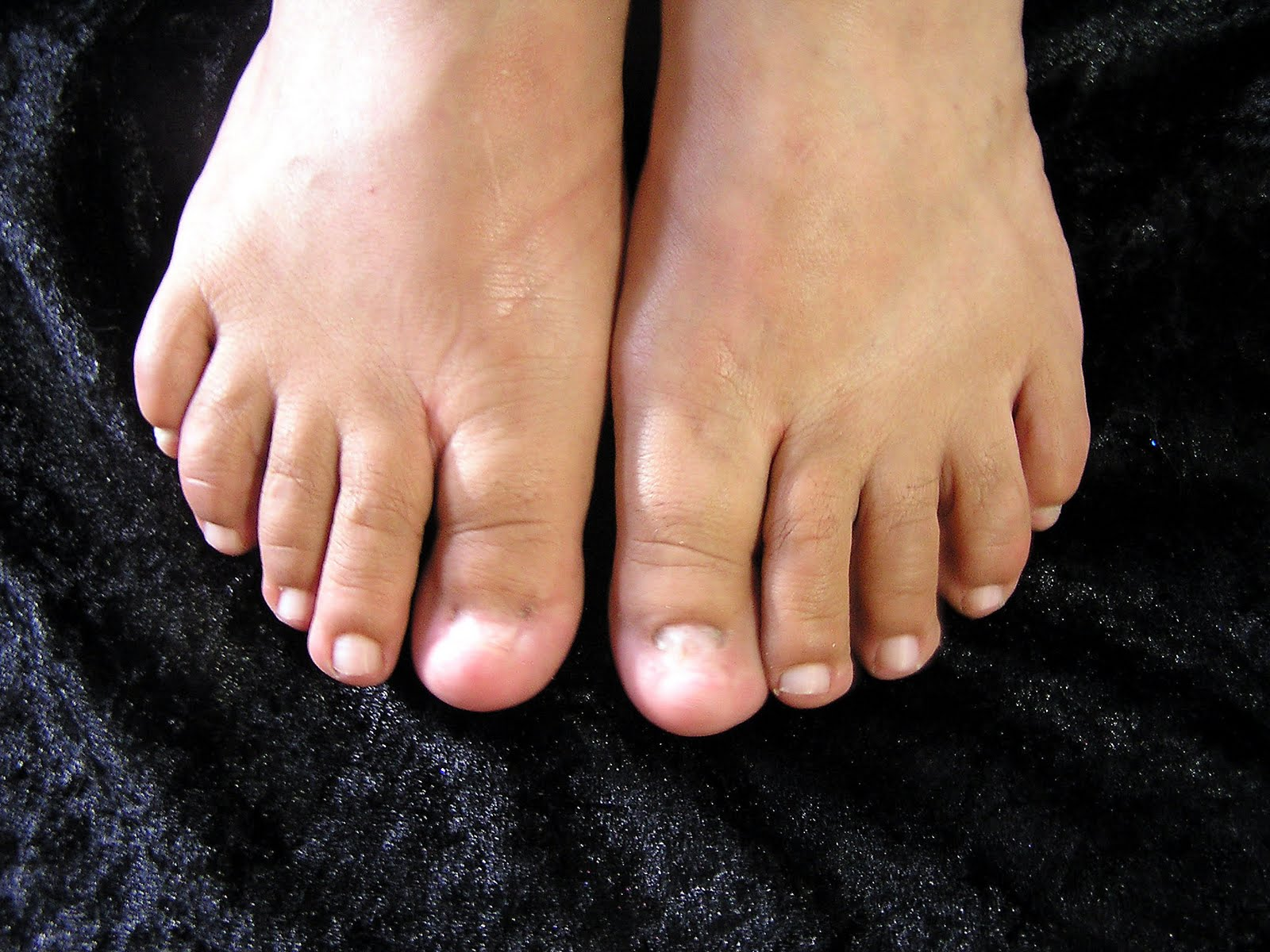 Artificial Toe Nails Online - Nails Gallery