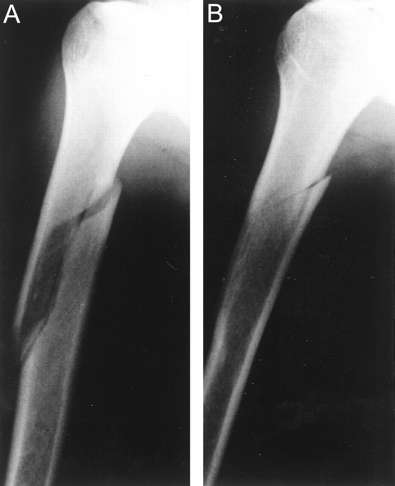 bone fractures Whenever a bone breaks or cracks, the injury is called a fracture the leg has three bones that can fracture — the femur (the thighbone) and the tibia and fibula in the lower leg when a fracture involves the knobby end portions of bones that are part of the hip, knee and ankle joints, the.