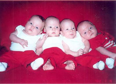 Genain quadruplets study