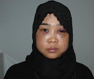 tki tkw wanita indonesia bersahaja ke malaysia jiran tetangga devisa negara kbri thailand gadis demak jadi tki jawa tengah rumah sakit penyiksaan dialaminya