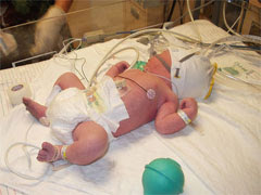 baby in NICU