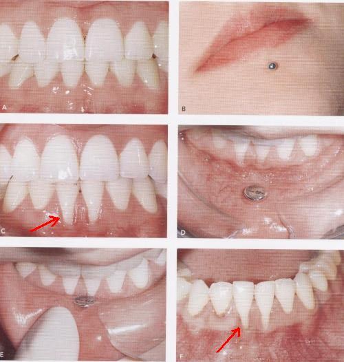 piercing no dente. PIERCING EM TECIDOS MOLES DA