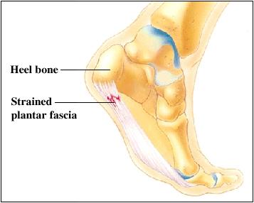 heel pain after walking