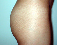 cellulite jambes
