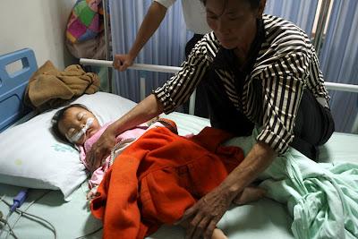 Criança com pedras nos rins, Chengdu