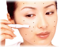 how to get rid of pimples blackheads and whiteheads overnight