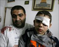 Verletztes_Kind_Khanyounis_28.01.09.jpg