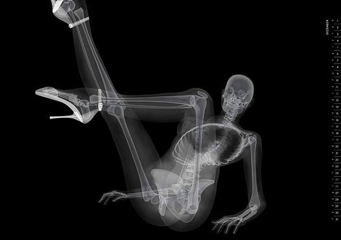 X Ray Calendar : We all seen pirelli calendar what about this unusual pin