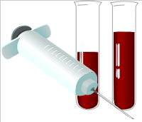How to diagnose Ebola? Lab tests are similar for most viral diseases – ELISA and PCR