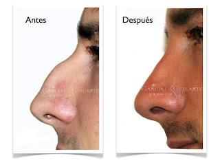 rinoplastia_operacion_cirugia_nariz