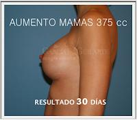 aumento_pecho_mamas_protesis_implantes