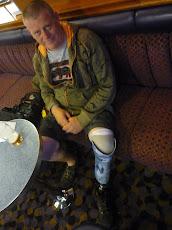 Kevin Bryant, Deminer, Lebanon Leg Loss