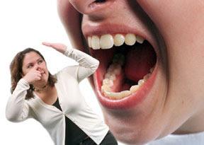 halitosis mal aliento