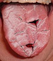 xerostomia boca seca