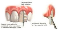 carillas dentales preparación