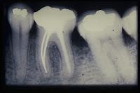 obturacion en endodoncia