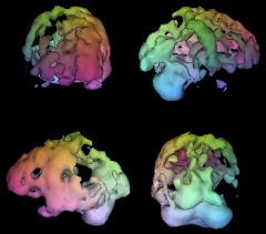 Brain SPECT - H εικόνα μιλά