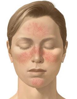 röd hud ansiktet